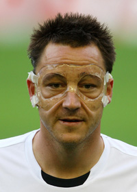 John Terry in his plastic mask.